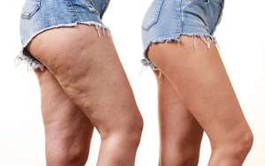 Come-dimagrire-e-combattere-la-cellulite-oli-essenziali