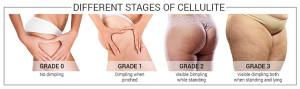 4-gradi-cellulite